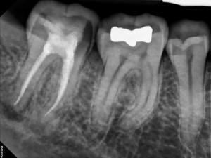 Diş röntgeninde amalgam dolgu ve kanala tedavisi. Amalgam dolgu radyoopak görünmektedir. Kompozit dolgu radyolusent olup röntgende belli olmamakla birlikte kanal tedabi patı da diş röntgeninde beyaz (radyoopak) görünmektedir.