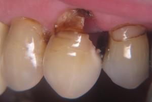 Büyük diş çürüklerinde diş artık dolguyla kurtarılamayacak hatta çürük diş eti seviyesinin altına inmişsse dişi ağızda tutulamayabilir