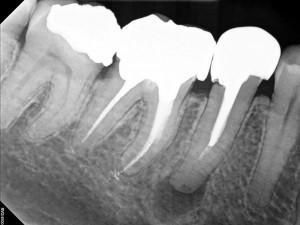 Diş röntgeninde kanal tedavili ve hem kanal tedavisi hem de pivo uygulanmış dişler yanyana