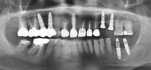 Alt ve üst çenelere uygulanmış diş implantlarının panoramik röntgen filminde görünümü