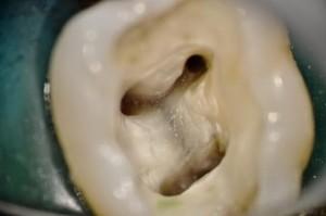 Bir azı dişinin endodontik kavitesinde kanal ağızları