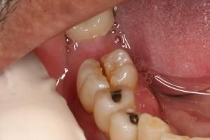 Ortadan kırılmış büyükazı dişi (molar)