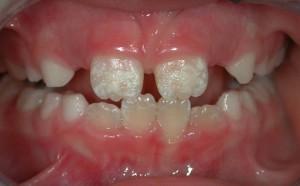 Mine hipoplazisi ve diğer basit rekleşmeler günümüzde diş dokusuna zarar vermeden tedavi edilebilmektedir
