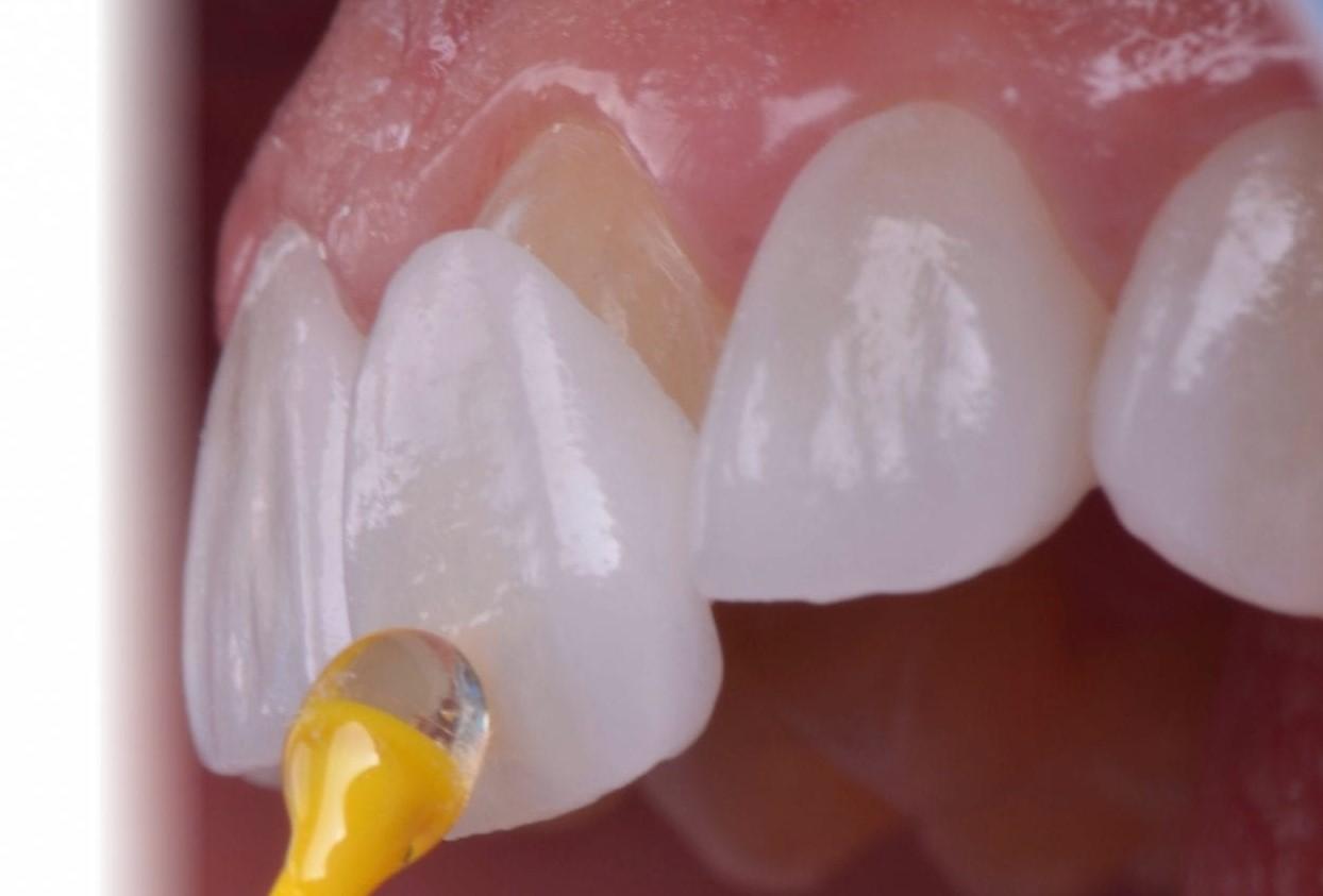 Lamine Diş Kaplamaları